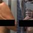 """""""Эндометриоз не шутка"""". Женщина выложила шокирующие фотографии, как это выглядит на самом деле"""