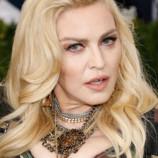 Слезли с иглы: Мадонна и другие звезды, отказавшиеся от инъекций ботокса